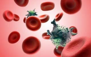 ВИЧ-инфекция: симптомы, стадии и пути заражения