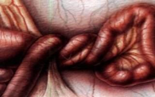 Причины и лечение заворота кишок у детей