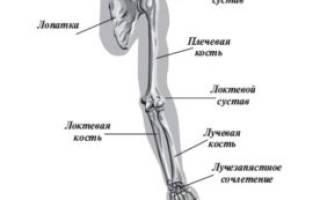 Перелом костей предплечья со смещением