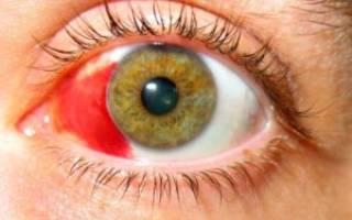 Симптомы и лечение кровоизлияния в оболочки глаза