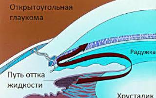 Виды глауком, симптомы, причины и лечение