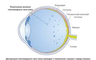 Мелькание мушек перед глазами: причины и лечение