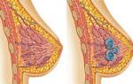 Причины, симптомы и лечение кисты в груди