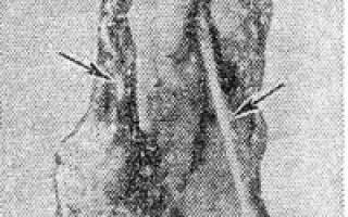 Остеогенная саркома