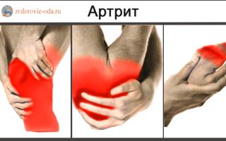 Чем артрит отличается от артроза?