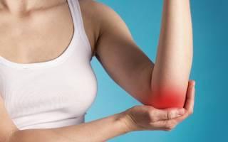 Артрит локтевого сустава (локтевой артрит)