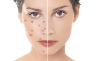 Симптомы и лечение актиномикоза полости рта