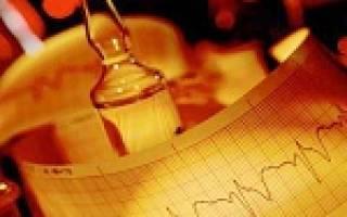 Причины и симптомы экстрасистолии