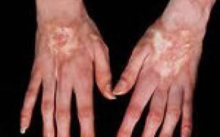 Причины и симптомы склеродермии