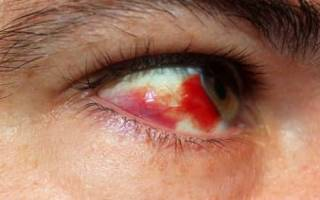 Лечение кровоизлияния в глаз народными средствами