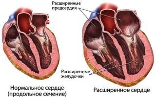 Причины, симптомы и лечение атрофии сердечной мышцы