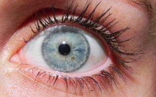 Симптомы и лечение меланомы глаза