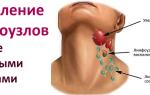 Лечение лимфоузлов народными средствами