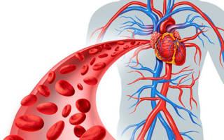 Гиперволемия: симптомы и лечение