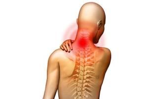 Основные приемы массажа при хондрозе шеи