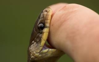 Укусы ядовитых змей