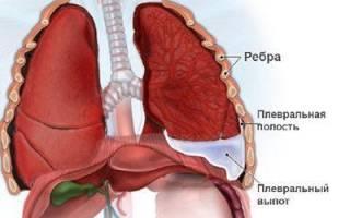 Симптомы и лечение спаек в легких