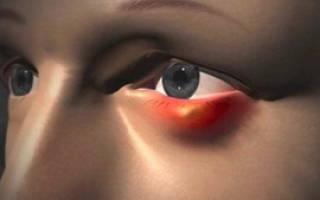 Ячмень на глазу: причины, симптомы и лечение