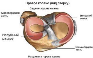 Причины и симптомы повреждения внутреннего мениска