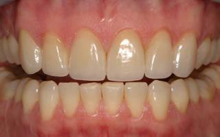 Заболевания зубов, дёсен и полости рта