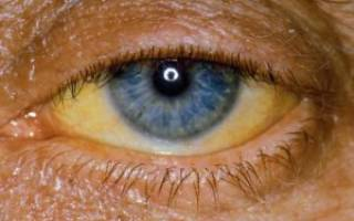 Желтые глаза: причины, что делать?