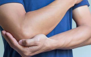Лечение растяжения мышц народными средствами