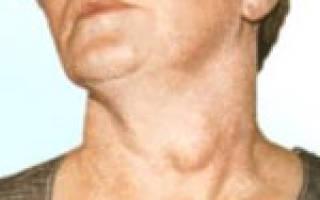 Причины, симптомы, диагностика и методы лечения зоба
