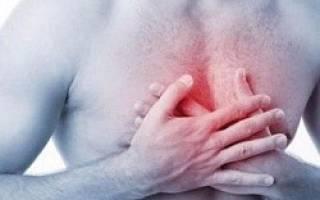 Рефлюкс-эзофагит: симптомы и методы лечения