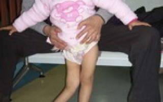 Симптомы, последствия и профилактика полиомиелита
