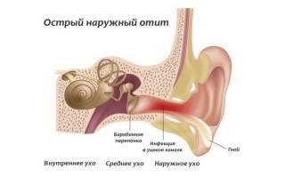Причины, симптомы и лечение наружного отита