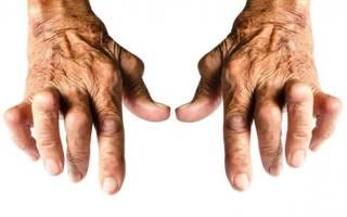 Серопозитивный ревматоидный артрит