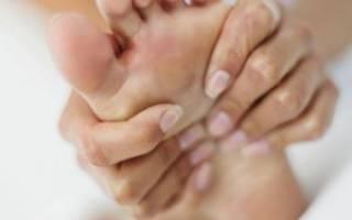 Лечение плоскостопия народными средствами