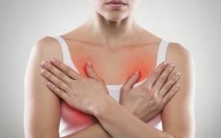 Серозный мастит: методы лечения