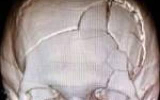 Линейный перелом черепа