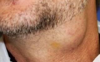 Закупорка слюнной железы, лечение