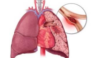 Тромбоэмболитические осложнения