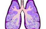 Симптомы, причины и лечение отека легких