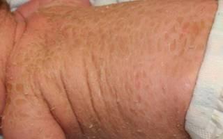 Ихтиоз кожи: формы, симптомы и лечение