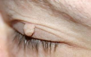 Причины и симптомы фибромы