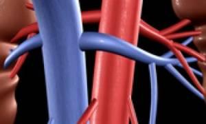 Тромбоз почечных вен
