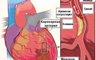 Тромб в сердце: симптомы и лечение