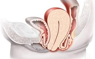 Опущение матки: причины и лечение