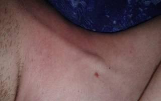 Тромбоз внутренней яремной вены