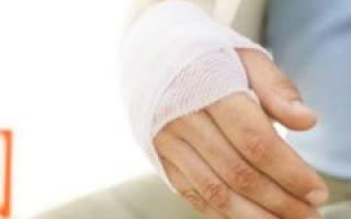 Перелом запястья руки со смещением