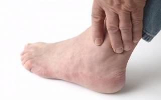 Почему отекают ноги у женщин и мужчин?