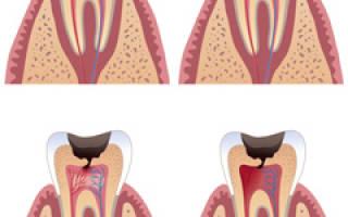 Причины, стадии и профилактика кариеса зубов