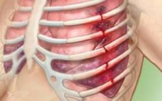 Перелом ребра со смещением