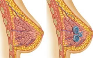 Диффузная, фиброзно-кистозная мастопатия