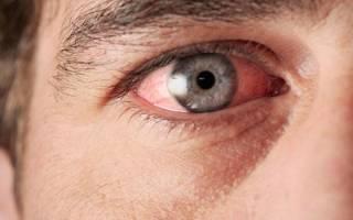 Воспаление глаз – чем промывать и лечить?