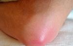 Причины, симптомы и осложнения бурсита